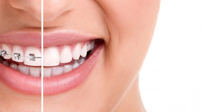 orthodontie sans broches Invisalign